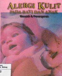 Alergi Kulit pada Bayi dan Anak