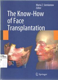 The Know - How of Face Transplantation